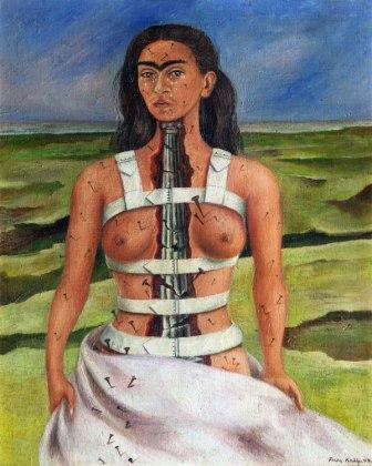 Le conseguenze dell'incidente per Frida Kahlo