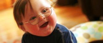 Bambino con la sindrome di Down